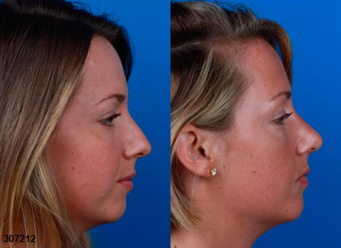 patient-12037-rhinoplasty-nosejob-before-after-1