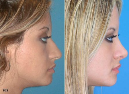 patient-12040-rhinoplasty-nosejob-before-after-2
