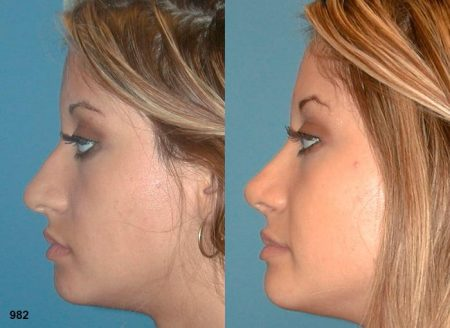 patient-12040-rhinoplasty-nosejob-before-after-3