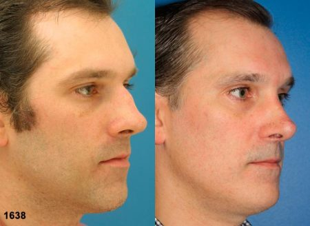 patient-12045-rhinoplasty-nosejob-before-after-2
