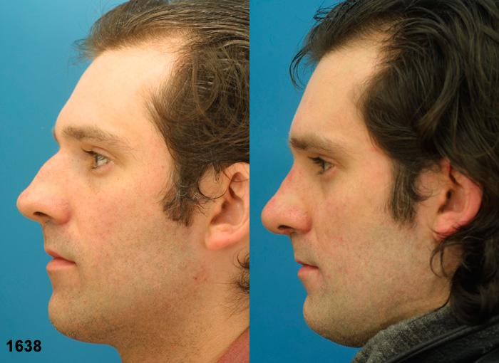 patient-12045-rhinoplasty-nosejob-before-after-3