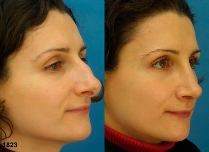patient-12050-rhinoplasty-nosejob-before-after-1