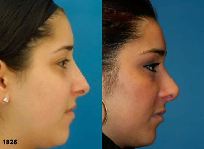 patient-12053-rhinoplasty-nosejob-before-after-2