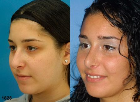 patient-12053-rhinoplasty-nosejob-before-after-3