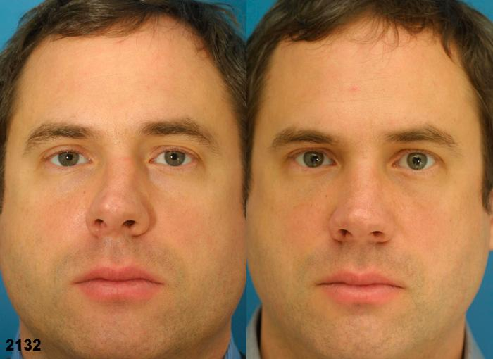 patient-12058-rhinoplasty-nosejob-before-after-2