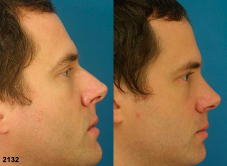 patient-12058-rhinoplasty-nosejob-before-after-3