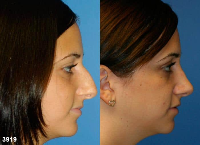 patient-12063-rhinoplasty-nosejob-before-after-1