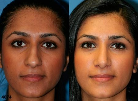 patient-12066-rhinoplasty-nosejob-before-after-3