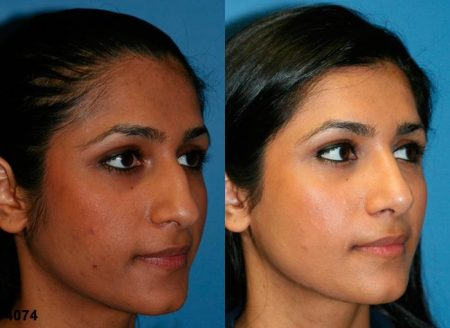 patient-12066-rhinoplasty-nosejob-before-after-4