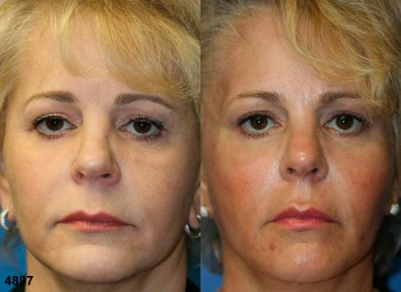 patient-12073-rhinoplasty-nosejob-before-after-3