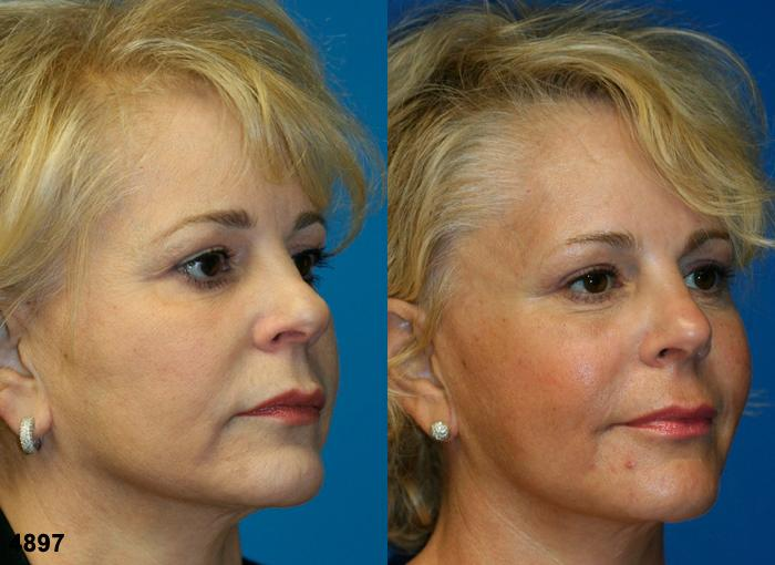 patient-12073-rhinoplasty-nosejob-before-after-4