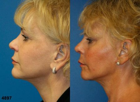 patient-12073-rhinoplasty-nosejob-before-after-5