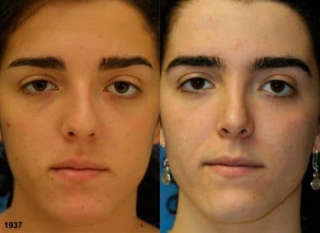 patient-12080-rhinoplasty-nosejob-before-after-3
