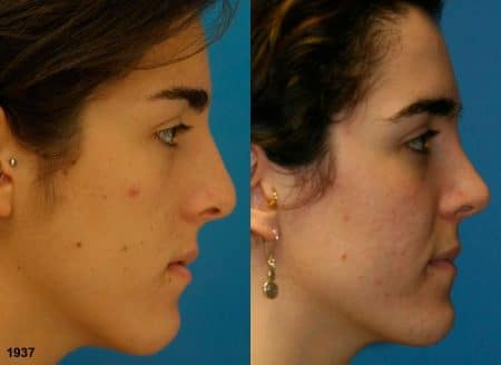 patient-12080-rhinoplasty-nosejob-before-after-4