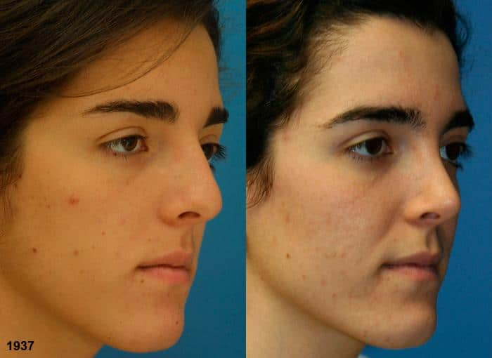 patient-12080-rhinoplasty-nosejob-before-after-5