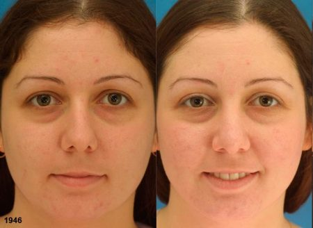 patient-12087-rhinoplasty-nosejob-before-after-3
