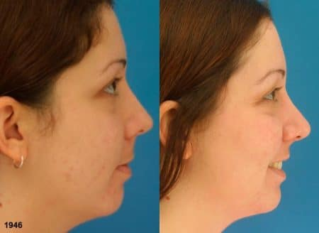 patient-12087-rhinoplasty-nosejob-before-after-4