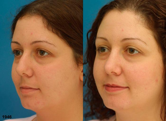 patient-12087-rhinoplasty-nosejob-before-after-5