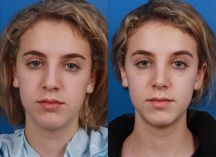 patient-12094-rhinoplasty-nosejob-before-after-5