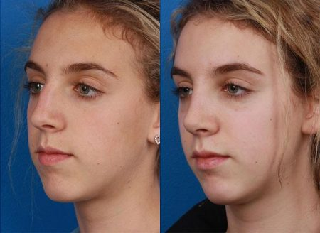 patient-12094-rhinoplasty-nosejob-before-after-7