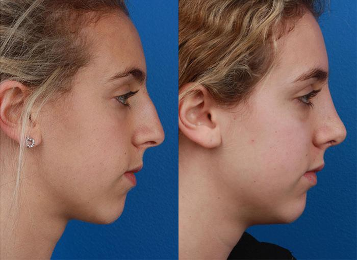 patient-12094-rhinoplasty-nosejob-before-after-8