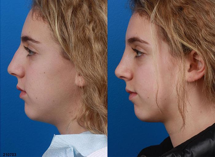 patient-12094-rhinoplasty-nosejob-before-after-9