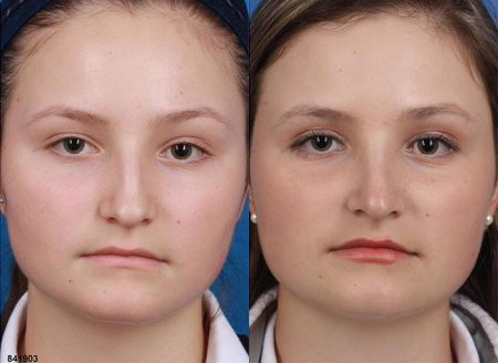 patient-12105-rhinoplasty-nosejob-before-after-4