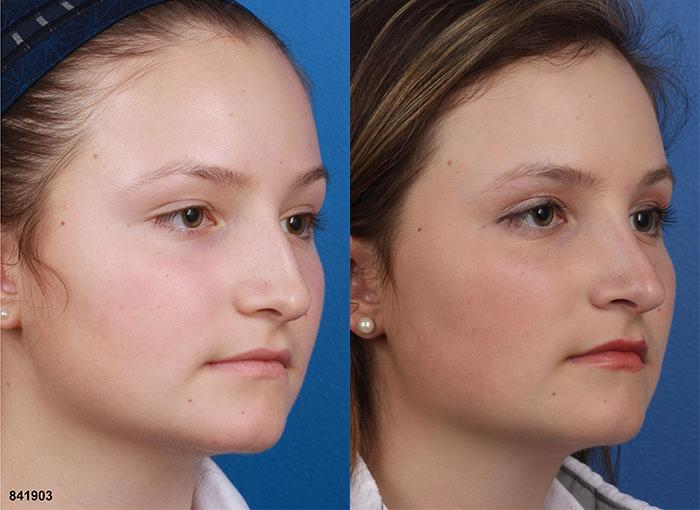 patient-12105-rhinoplasty-nosejob-before-after-5