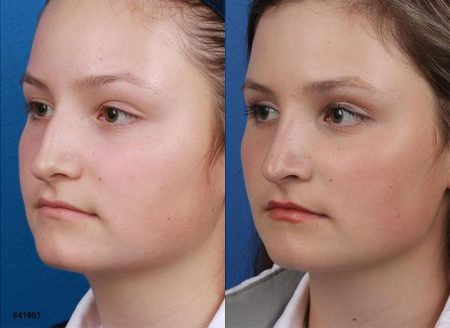 patient-12105-rhinoplasty-nosejob-before-after-6