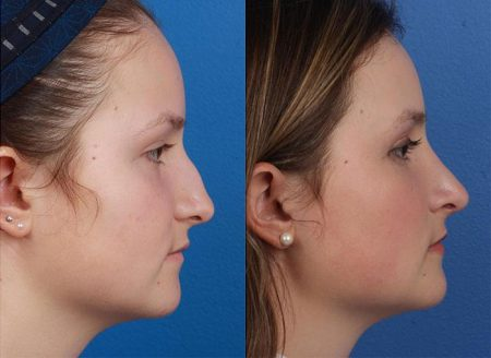 patient-12105-rhinoplasty-nosejob-before-after-7