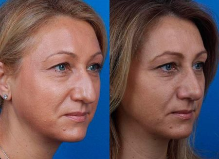 patient-12123-rhinoplasty-nosejob-before-after-5
