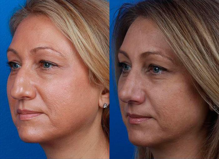 patient-12123-rhinoplasty-nosejob-before-after-6