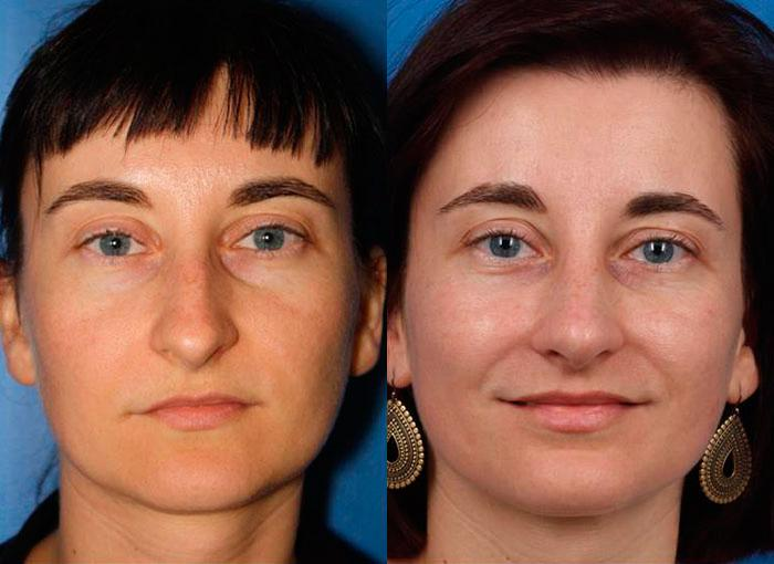 patient-12132-rhinoplasty-nosejob-before-after-2
