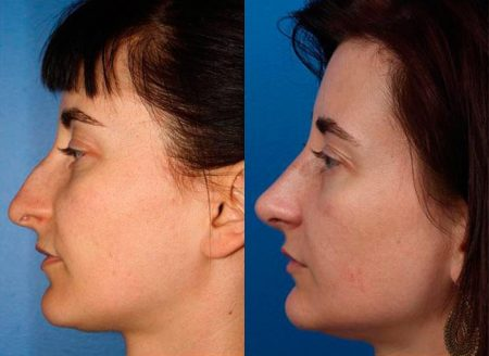 patient-12132-rhinoplasty-nosejob-before-after-3