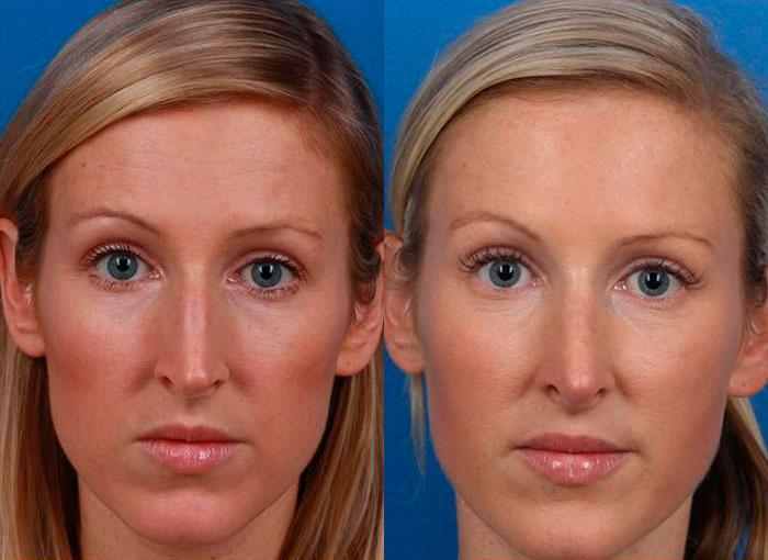 patient-12137-rhinoplasty-nosejob-before-after-3