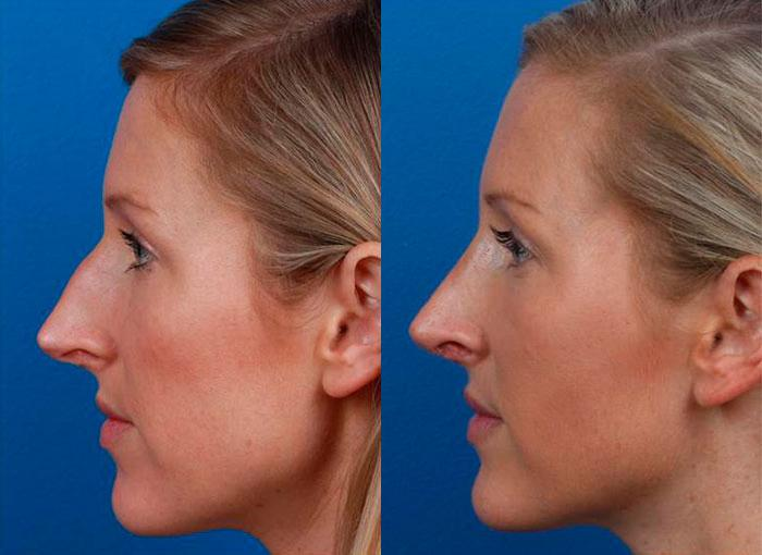 patient-12137-rhinoplasty-nosejob-before-after-4