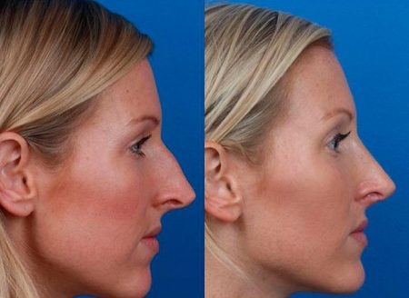 patient-12137-rhinoplasty-nosejob-before-after-5