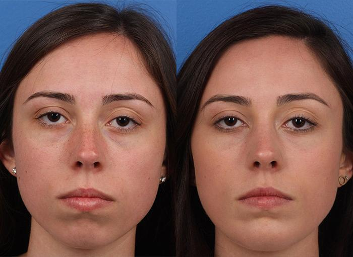 patient-12144-rhinoplasty-nosejob-before-after-3