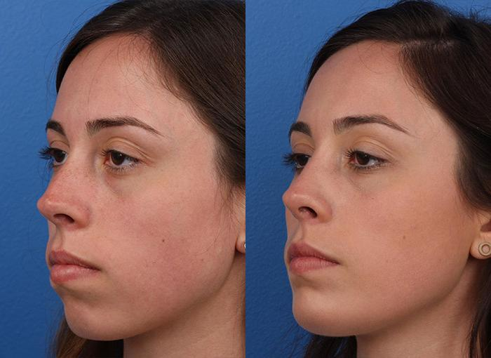 patient-12144-rhinoplasty-nosejob-before-after-4