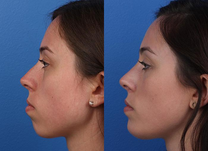patient-12144-rhinoplasty-nosejob-before-after-5