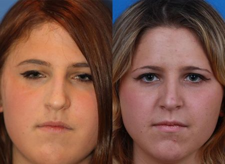 patient-12151-rhinoplasty-nosejob-before-after-3