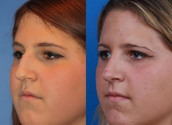 patient-12151-rhinoplasty-nosejob-before-after-4