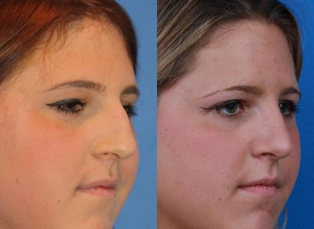 patient-12151-rhinoplasty-nosejob-before-after-5
