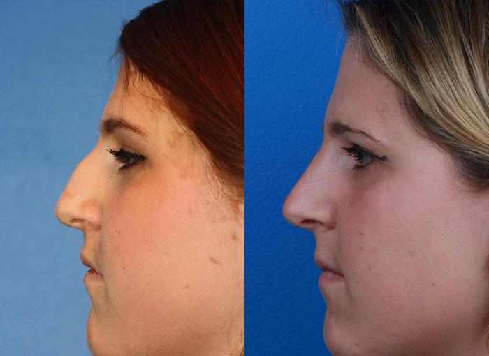 patient-12151-rhinoplasty-nosejob-before-after-6