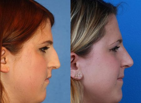 patient-12151-rhinoplasty-nosejob-before-after-7