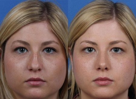 patient-12158-rhinoplasty-nosejob-before-after-3