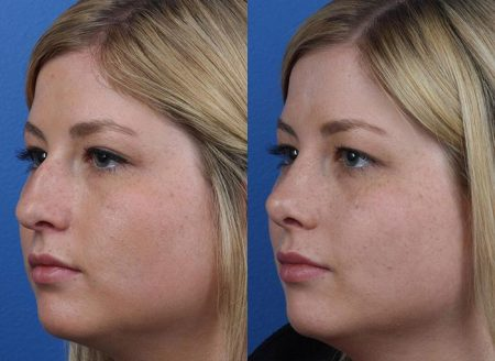 patient-12158-rhinoplasty-nosejob-before-after-4