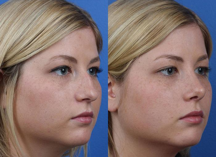 patient-12158-rhinoplasty-nosejob-before-after-5