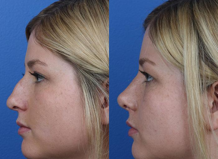 patient-12158-rhinoplasty-nosejob-before-after-6