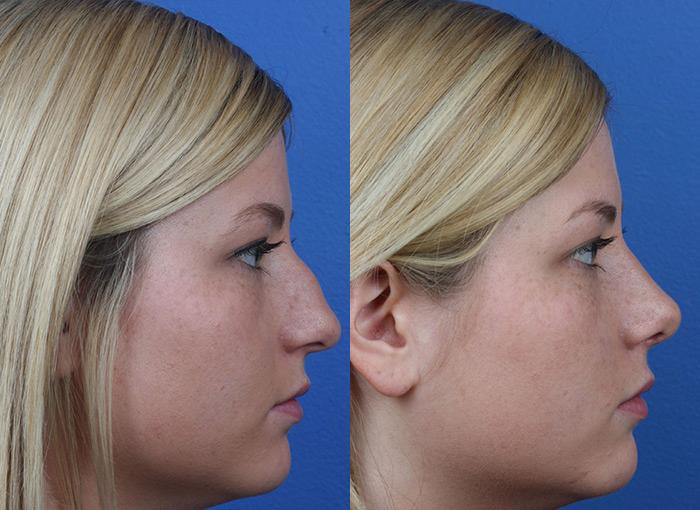 patient-12158-rhinoplasty-nosejob-before-after-7
